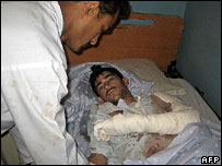 Wounded Afghan demonstrator, Sheberghan, May 2007