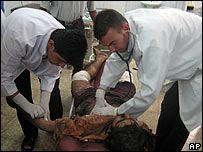 Medics treat a man injured in a bombing at Dakuk, Iraq, 8/6/07
