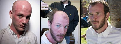 Robert bald; having hair plugs implanted; and with a full head of fake hair