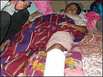 Sonia, 14, who claims her leg was broken by Indian soldiers