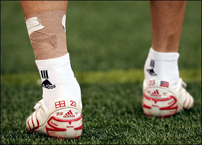 David Beckham's bandaged ankle prior to the game against New York