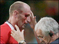 Wales captain Gareth Thomas will bear the scars of defeat to France