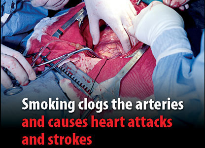 Tobacco packet warning of open heart surgery