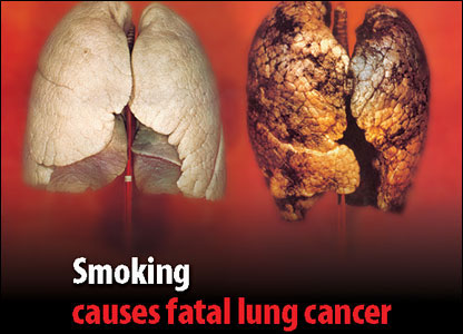 Tobacco packet warning of diseased lung
