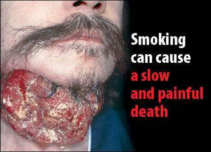 Tobacco packet warning of man with tumour