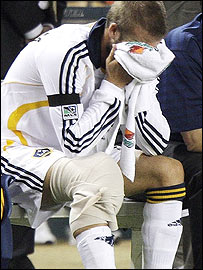 Beckham had his right knee bandaged after being substituted