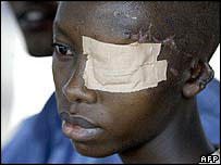 Injured boy in Burundi (archive pic)