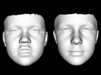 "3D image comparing ""average"" face of someone with Smith-Magenis syndrome with someone with no genetic known genetic condition (r) (Image: Peter Hammond)"