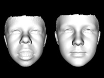 "3D face scan comparing the ""average"" face of someone with Williams syndrome with someone with no genetic known genetic condition (r) (Image: Peter Hammond)"