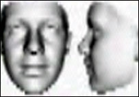 Facial features of person with Fragile X Syndrome