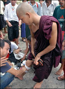 An injured monk receiving treatment.