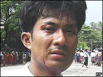 Un manifestante herido durante las protestas en Rangún.