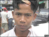 Picture received by the MoeMaka Media internet blog 27 September, 2007 shows a high school student who was allegedly beaten