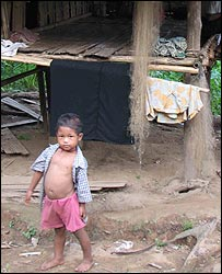 Child in Lerperher camp, northern Burma