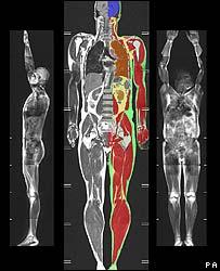 MRI Scan showing internal fat deposits