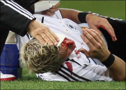 Rep of Ire v Germany: Bastian Schweinsteiger requires treatment to a nasty head injury