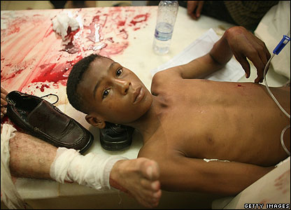 Wounded boy in hospital
