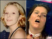 Amy Pickard before and after the heroin overdose