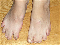 A pair of feet shows the effects of thalidomide