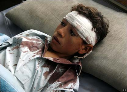 Wounded Afghan boy in hospital in Baghlan, 7 November 2007