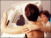 Mammography scan, SPL