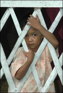 A malnourished child in a clinic