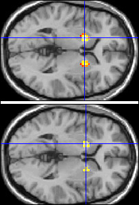 Brain scans (NeuroCognition Imaging Group)