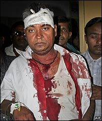 Injured man in Varanasi