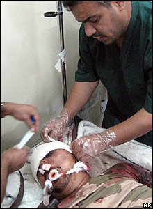A wounded man is treated in hospital after the attack