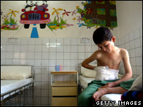 A child injured by a landmine in Kurdish hospital