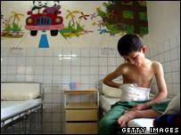 A child injured by a landmine in Kurdish hospital