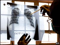 X-ray of a patient at a TB clinic, South Africa [File pic]