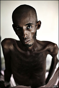 An injured man undergoing hospital treatment in Mogadishu (image from 13 December)