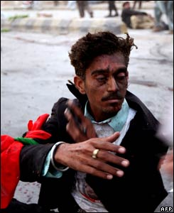 A survivor awaits an ambulance immediately after the attack.