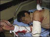 Wounded in the Baghdad bomb blast