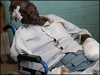 A man who had one of his hands chopped of with a machete sit in a wheelchair at the hospital in the town of Burnt Forest