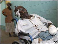 An elderly man, who had a hand chopped off in a machete attack, at a hospital in Kenya on 4 January