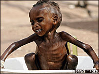 Malnourished Kenyan child receives a wash