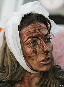 Victim in the Israeli town of Sderot