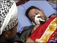 Victim of suicide bombing