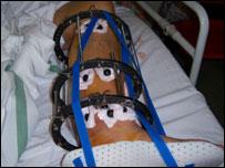 Sam Brown's broken leg