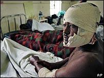 Benadi Mbawa, 32, who was attacked by men with machetes, sits bandaged on a hospital bed, in Nakuru, Kenya