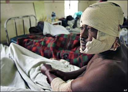 Benadi Mbawa, 32, who was attacked by men with machetes, sits bandaged on a hospital bed, in Nakuru, Kenya, on Saturday
