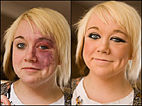 A woman with a skin condition
