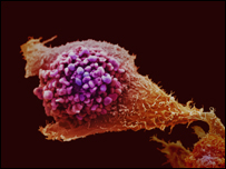 Prostate cancer cell courtesy of Cancer Research UK