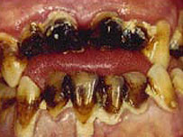 'Meth mouth' - the results of smoking crystal meth