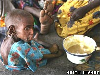 A Sudanese refugee child with malnutrition