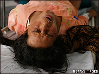 Una mujer afgana es tratada despu�s del parto.