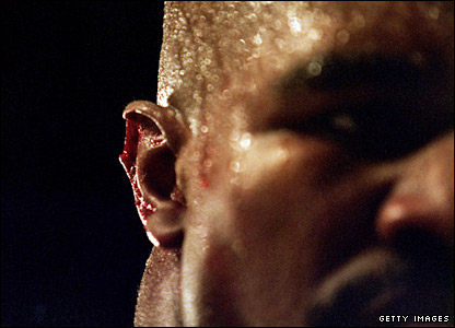 Holyfield's ear after the second Tyson fight