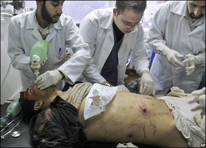 Palestinian doctors tend to a seriously wounded man after an Israeli missile strike in Gaza City.